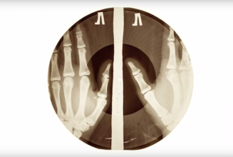 The story of X-Ray Audio – the Soviet bootleg records cut onto discarded x-rays
